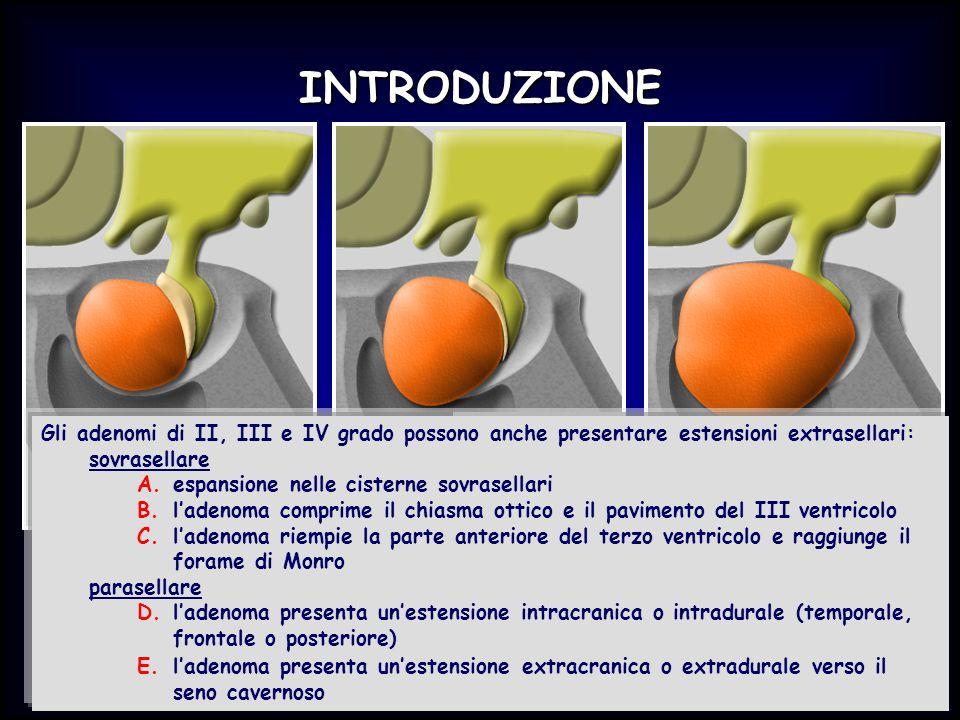 INTRODUZIONE Gli adenomi di II, III e IV grado possono anche presentare estensioni extrasellari: sovrasellare A.espansione nelle cisterne sovrasellari