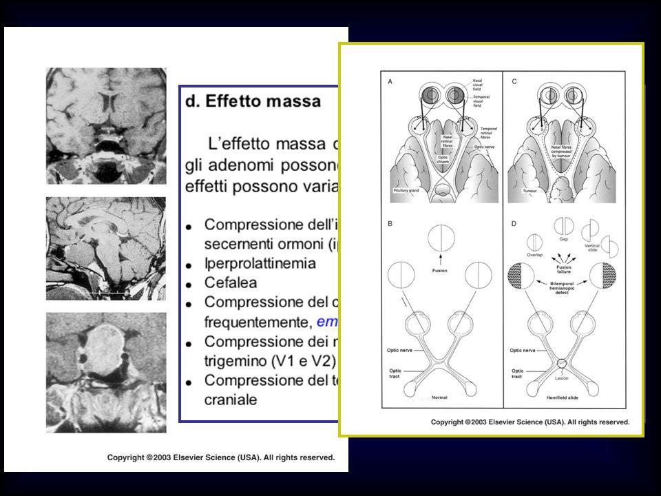 Chiasma Anteroipofisi Peduncolo Post-ipofisi Ipotalamo CONSEGUENZE CLINICHE DEGLI ADENOMI IPOFISARI EFFETTO MASSA Compressione chiasmatica : Effetti sul campo visivo