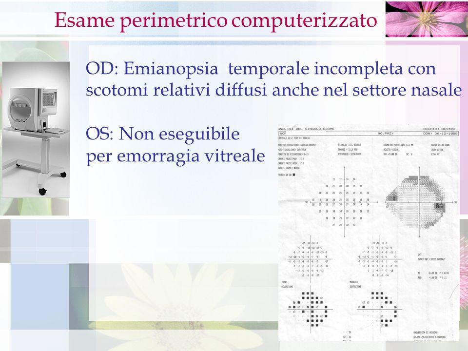 OD: Emianopsia temporale incompleta con scotomi relativi diffusi anche nel settore nasale OS: Non eseguibile per emorragia vitreale Esame perimetrico