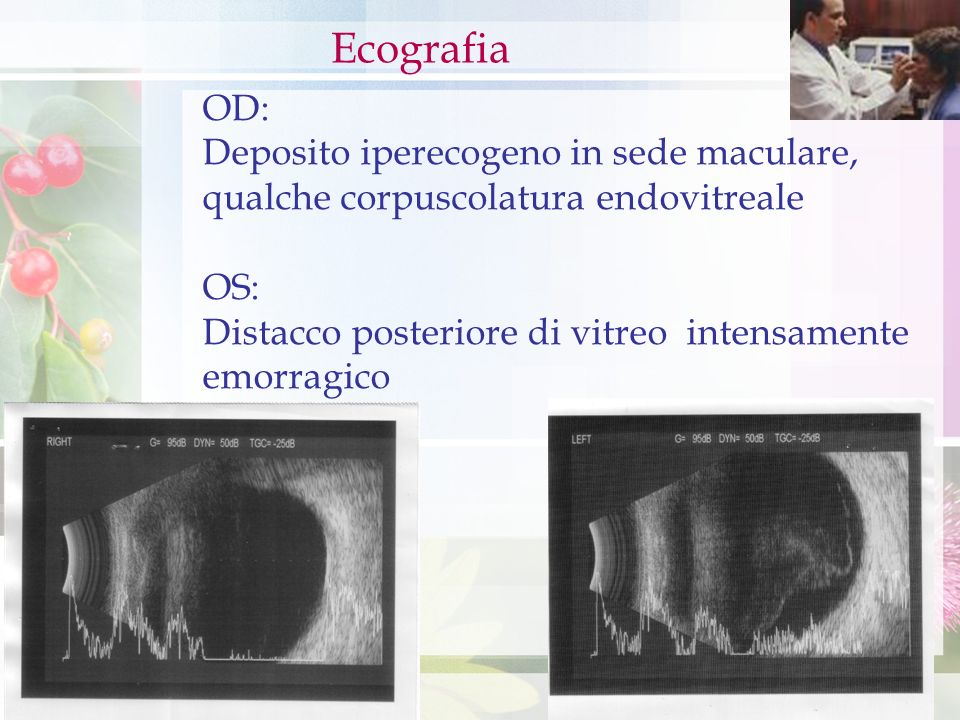 OD: Deposito iperecogeno in sede maculare, qualche corpuscolatura endovitreale OS: Distacco posteriore di vitreo intensamente emorragico Ecografia