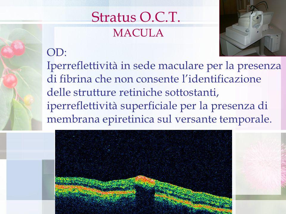 Stratus OCT OD: Iperreflettività in sede maculare per la presenza di fibrina che non consente lidentificazione delle strutture retiniche sottostanti,