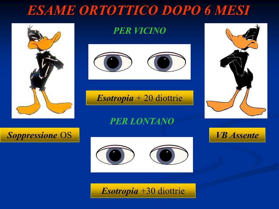 ESAME ORTOTTICO DOPO 6 MESI Esotropia + 20 diottrie Esotropia +30 diottrie Soppressione OS VB Assente PER VICINO PER LONTANO