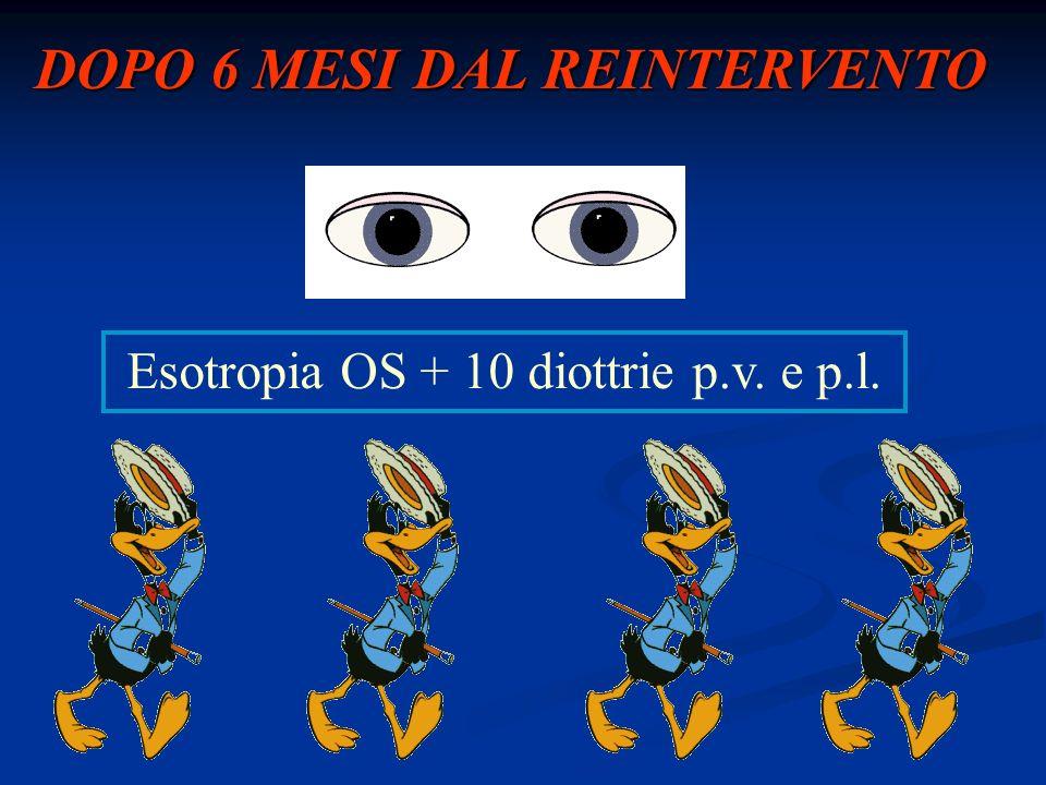 DOPO 6 MESI DAL REINTERVENTO Esotropia OS + 10 diottrie p.v. e p.l.