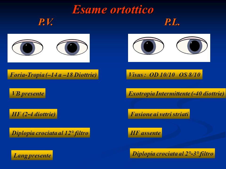 Esame ortottico P.V.P.L. Foria-Tropia (–14 a –18 Diottrie) VB presente HF (2-4 diottrie) Diplopia crociata al 12° filtro Lang presente Exotropia Inter