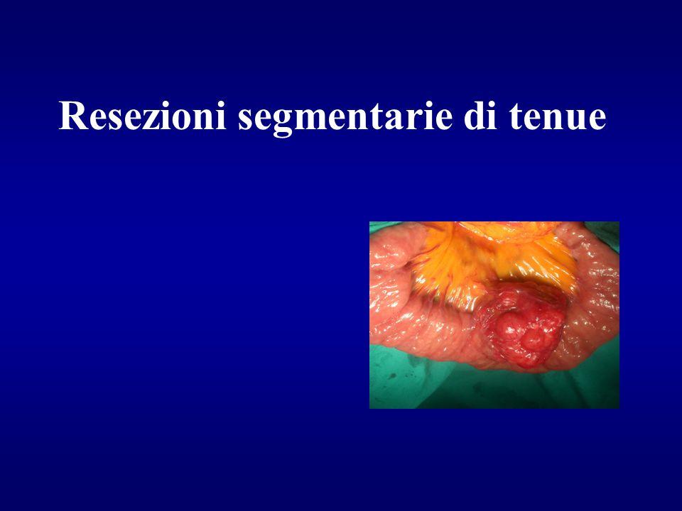 Resezioni segmentarie di tenue