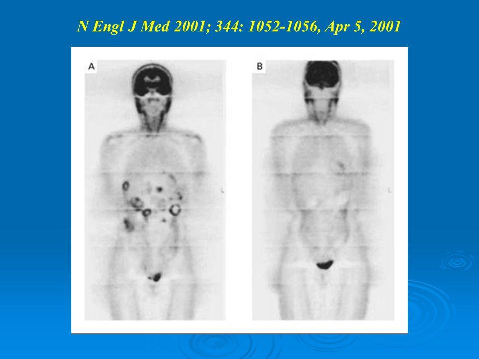 N Engl J Med 2001; 344: 1052-1056, Apr 5, 2001