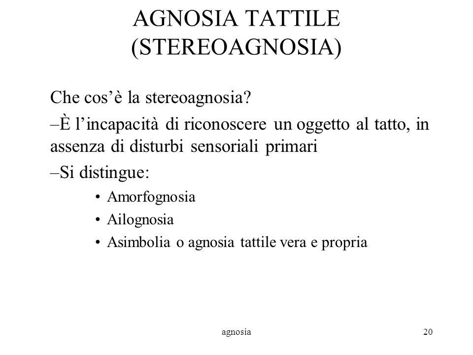 agnosia20 AGNOSIA TATTILE (STEREOAGNOSIA) Che cosè la stereoagnosia.