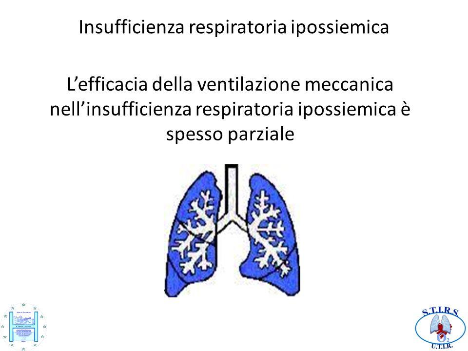 Lefficacia della ventilazione meccanica nellinsufficienza respiratoria ipossiemica è spesso parziale