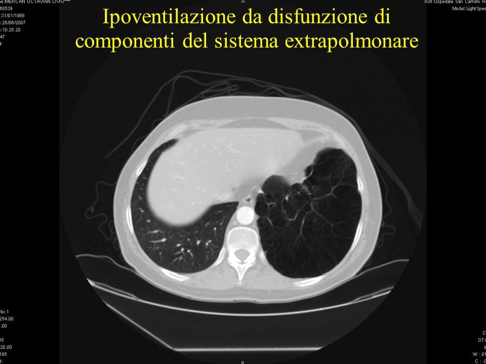 10/10/11 Ipoventilazione da disfunzione di componenti del sistema extrapolmonare