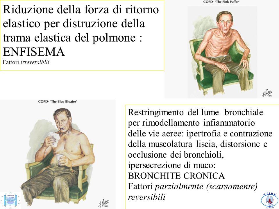 10/10/11 Riduzione della forza di ritorno elastico per distruzione della trama elastica del polmone : ENFISEMA Fattori irreversibili Restringimento de