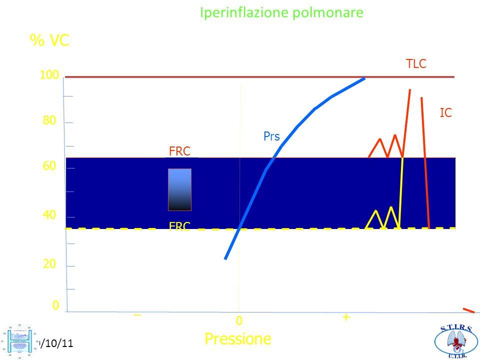 FRC IC TLC FRC 0 20 40 80 0 + _ 60 100 % VC Iperinflazione polmonare Pressione Prs