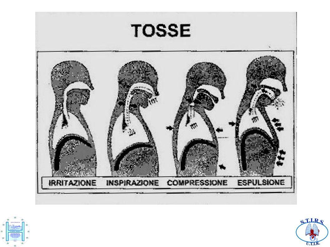 Posizionamento e mobilizzazione Posizione di base a 45°: a FRC le zone declivi del polmone tendono a collassare agevolando la formazione di atelettasie.
