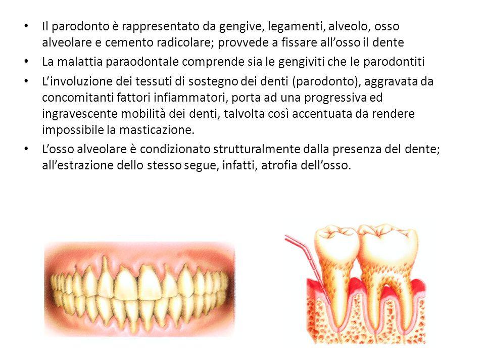 Il parodonto è rappresentato da gengive, legamenti, alveolo, osso alveolare e cemento radicolare; provvede a fissare allosso il dente La malattia para