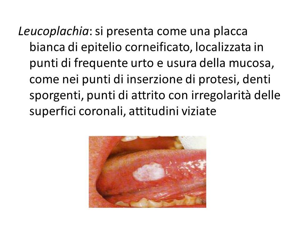 Leucoplachia: si presenta come una placca bianca di epitelio corneificato, localizzata in punti di frequente urto e usura della mucosa, come nei punti