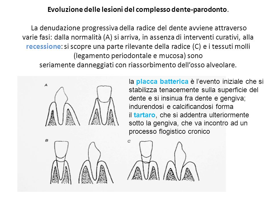 Evoluzione delle lesioni del complesso dente-parodonto. La denudazione progressiva della radice del dente avviene attraverso varie fasi: dalla normali