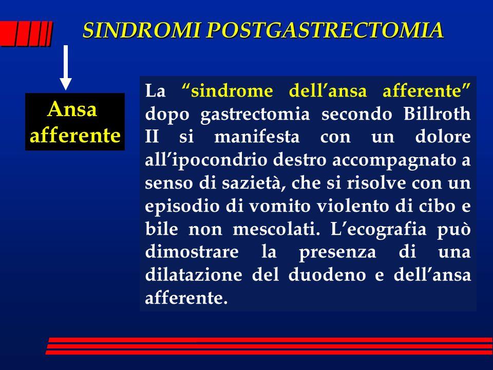 SINDROMI POSTGASTRECTOMIA Ansa afferente La sindrome dellansa afferente dopo gastrectomia secondo Billroth II si manifesta con un dolore allipocondrio