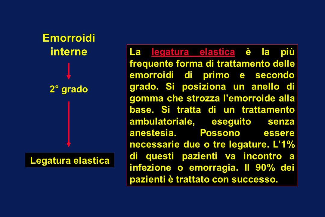 Emorroidi interne 2° grado Legatura elastica La legatura elastica è la più frequente forma di trattamento delle emorroidi di primo e secondo grado. Si