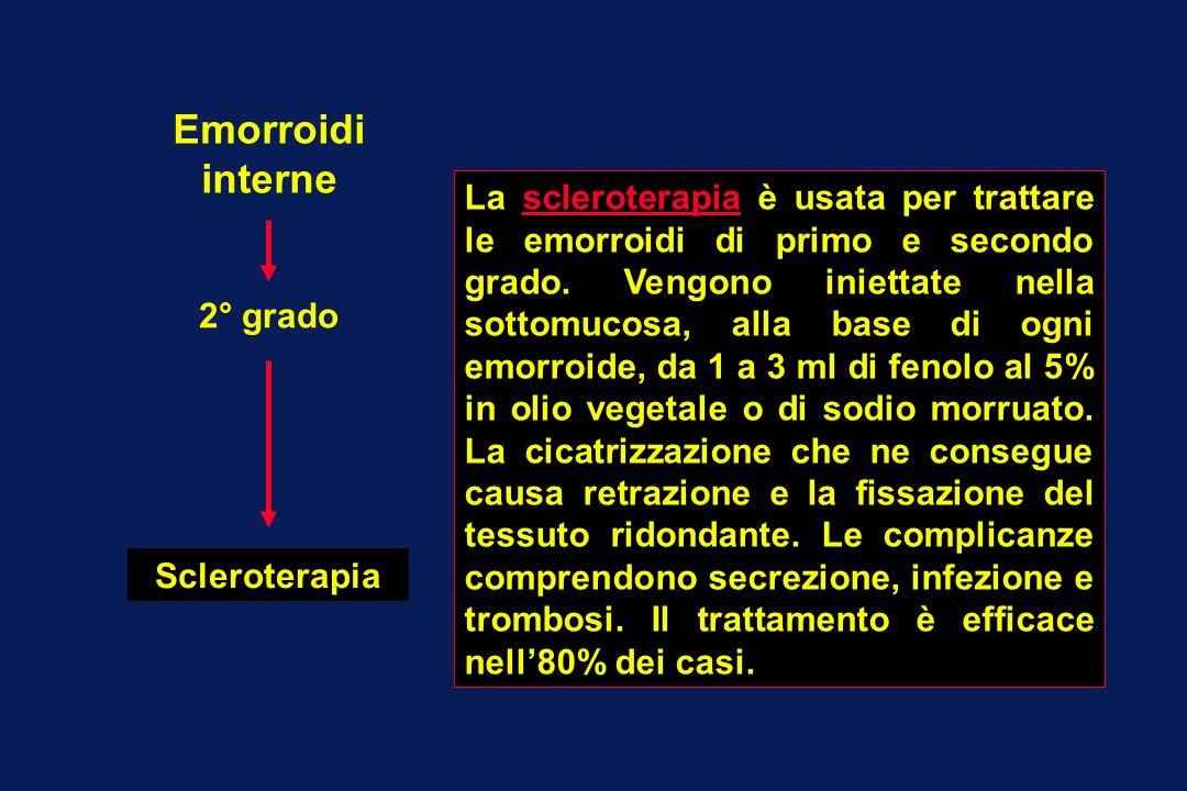Emorroidi interne 2° grado Scleroterapia La scleroterapia è usata per trattare le emorroidi di primo e secondo grado. Vengono iniettate nella sottomuc