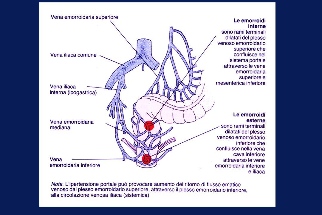 Anamnesi RETTORRAGIA/dolore SECREZIONI PRURITO STIPSI Malattie associate EMORROIDI La cirrosi epatica, lascite e le pneumopatie croniche possono contribuire allo sviluppo delle emorroidi.