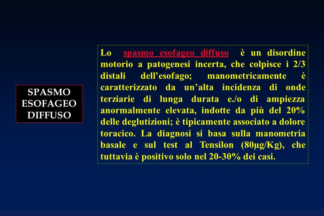 SPASMO ESOFAGEO DIFFUSO Lo spasmo esofageo diffuso è un disordine motorio a patogenesi incerta, che colpisce i 2/3 distali dellesofago; manometricamen