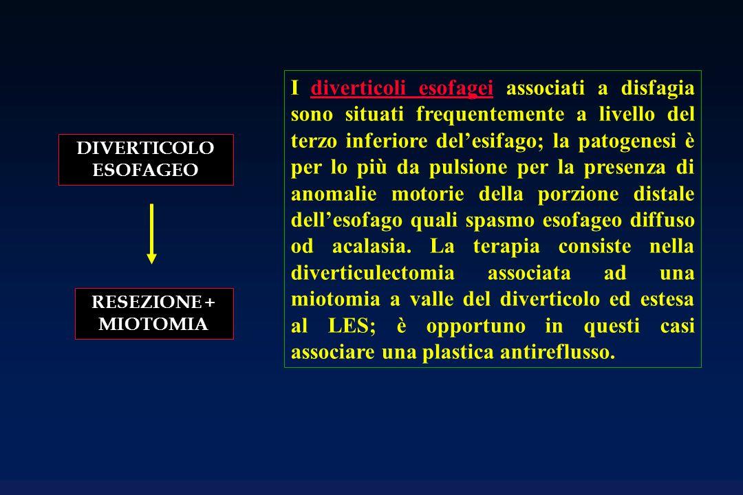DIVERTICOLO ESOFAGEO RESEZIONE + MIOTOMIA I diverticoli esofagei associati a disfagia sono situati frequentemente a livello del terzo inferiore delesi