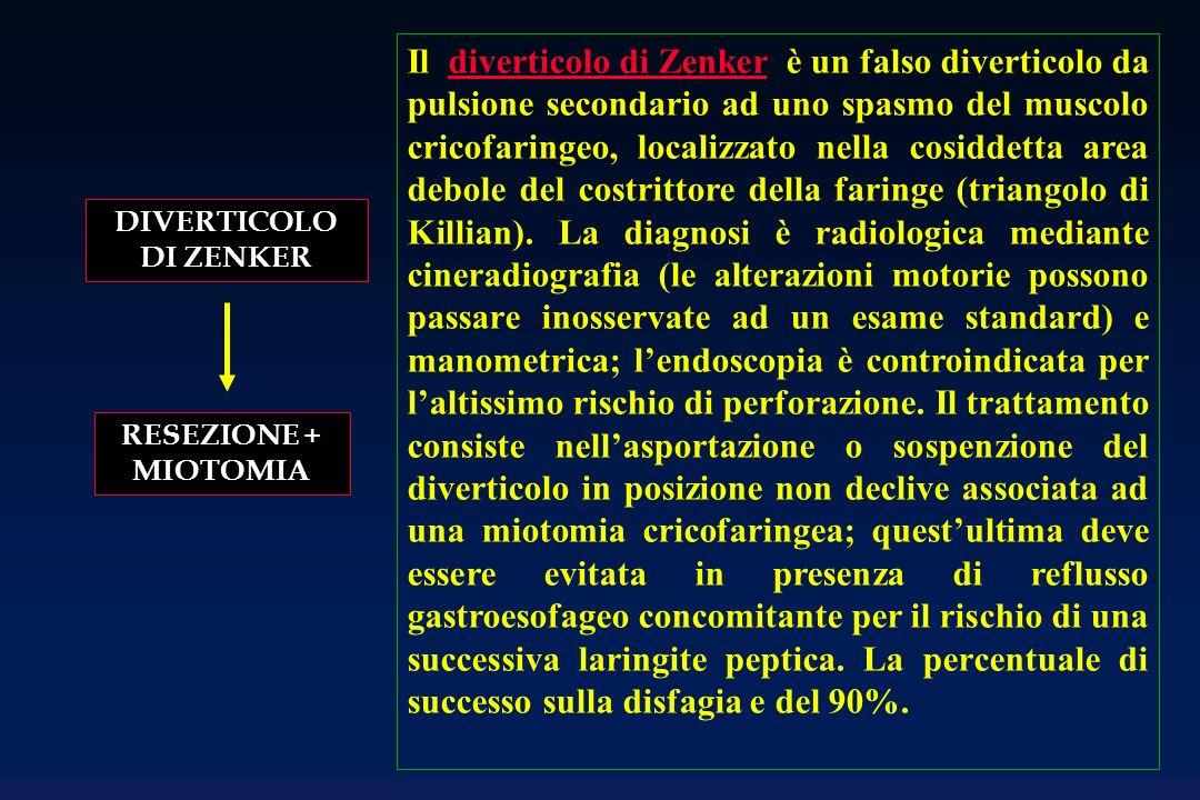 DIVERTICOLO DI ZENKER RESEZIONE + MIOTOMIA Il diverticolo di Zenker è un falso diverticolo da pulsione secondario ad uno spasmo del muscolo cricofarin