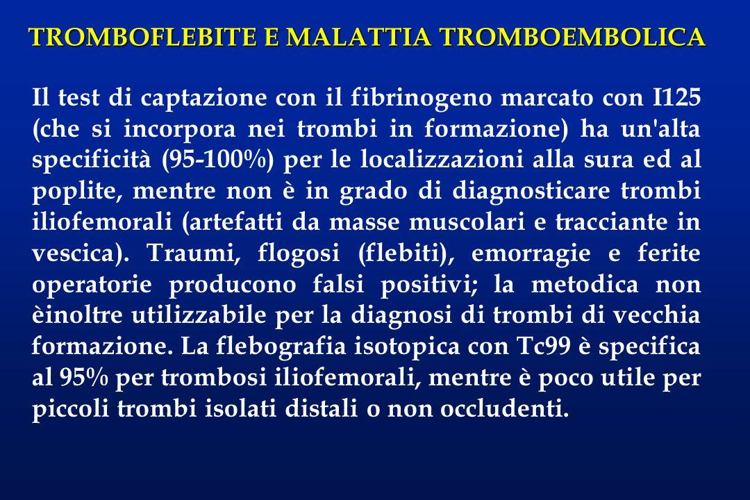 TROMBOFLEBITE E MALATTIA TROMBOEMBOLICA Il test di captazione con il fibrinogeno marcato con I125 (che si incorpora nei trombi in formazione) ha un'al