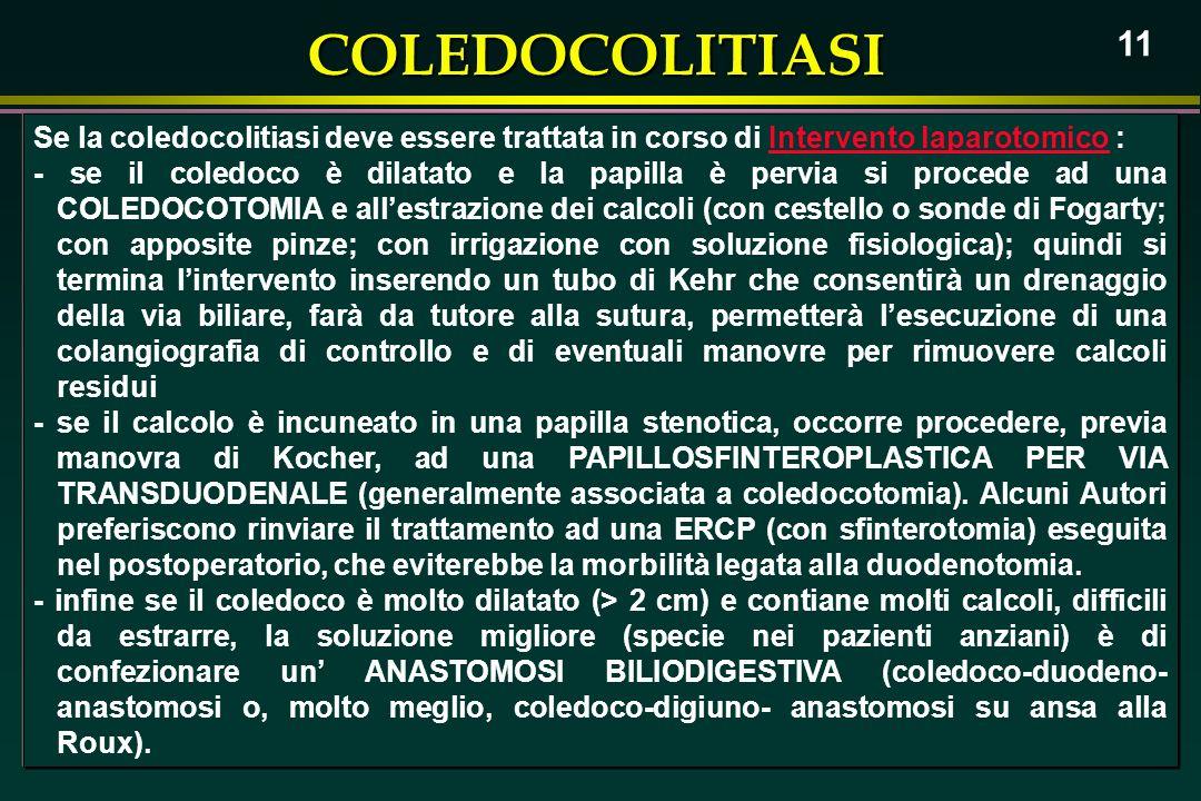 COLEDOCOLITIASI 11 Se la coledocolitiasi deve essere trattata in corso di Intervento laparotomico : - se il coledoco è dilatato e la papilla è pervia