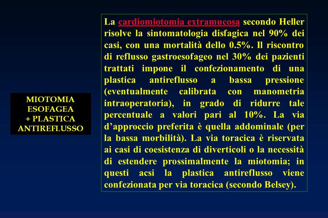 MIOTOMIA ESOFAGEA + PLASTICA ANTIREFLUSSO La cardiomiotomia extramucosa secondo Heller risolve la sintomatologia disfagica nel 90% dei casi, con una mortalità dello 0.5%.
