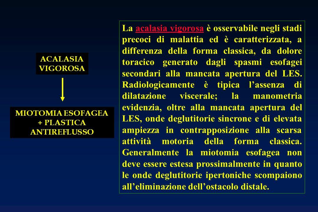 ACALASIA VIGOROSA MIOTOMIA ESOFAGEA + PLASTICA ANTIREFLUSSO La acalasia vigorosa è osservabile negli stadi precoci di malattia ed è caratterizzata, a