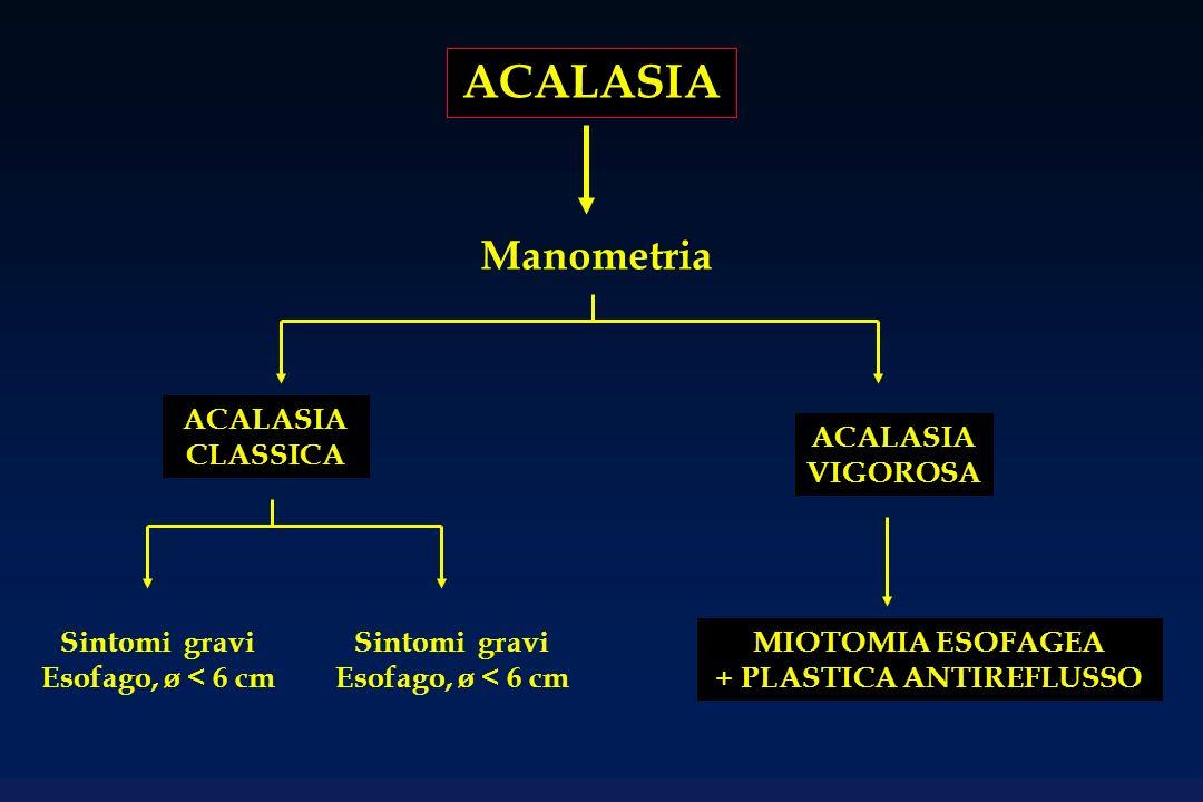 ACALASIA Manometria ACALASIA CLASSICA ACALASIA VIGOROSA MIOTOMIA ESOFAGEA + PLASTICA ANTIREFLUSSO Sintomi gravi Esofago, ø < 6 cm Sintomi gravi Esofag