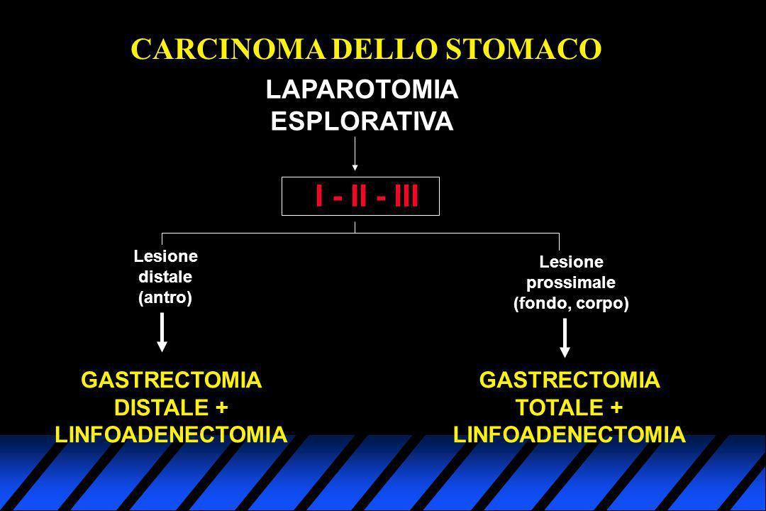 CARCINOMA DELLO STOMACO I - II - III LAPAROTOMIA ESPLORATIVA Lesione distale (antro) Lesione prossimale (fondo, corpo) GASTRECTOMIA DISTALE + LINFOADE