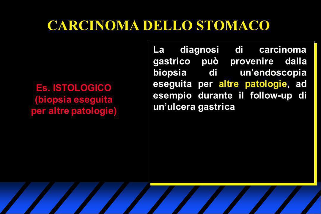 Es. ISTOLOGICO (biopsia eseguita per altre patologie) CARCINOMA DELLO STOMACO La diagnosi di carcinoma gastrico può provenire dalla biopsia di unendos