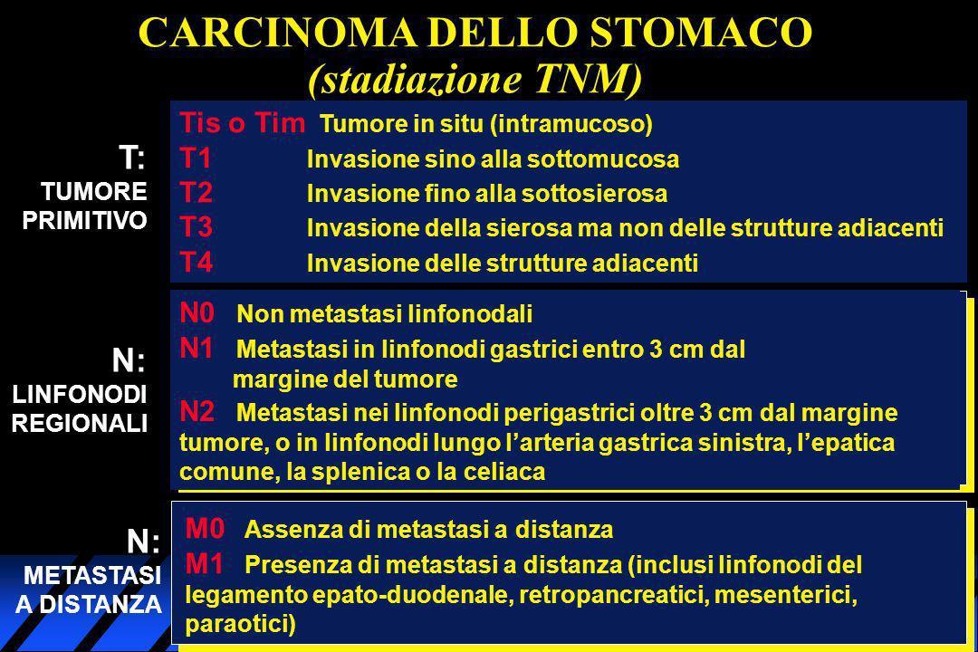 CARCINOMA DELLO STOMACO (stadiazione TNM) T: TUMORE PRIMITIVO Tis o Tim Tumore in situ (intramucoso) T1 Invasione sino alla sottomucosa T2 Invasione f