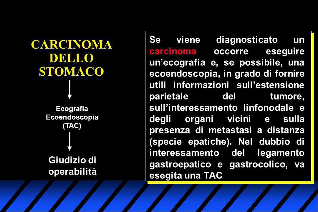 CARCINOMA DELLO STOMACO Se viene diagnosticato un carcinoma occorre eseguire unecografia e, se possibile, una ecoendoscopia, in grado di fornire utili