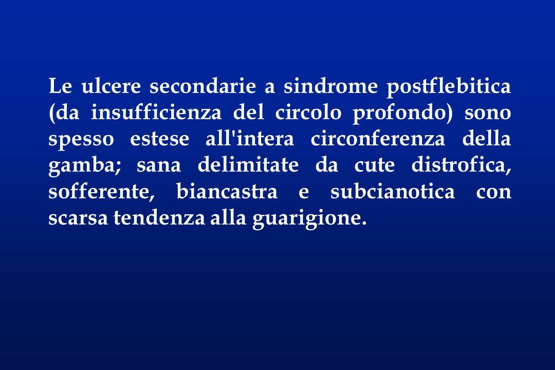 Le ulcere secondarie a sindrome postflebitica (da insufficienza del circolo profondo) sono spesso estese all'intera circonferenza della gamba; sana de