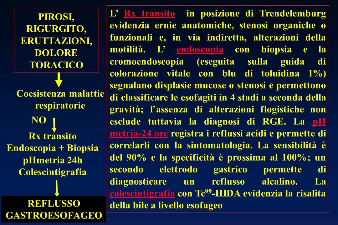 REFLUSSO GASTROESOFAGEO Esofagite I - II - III Esofagite IV