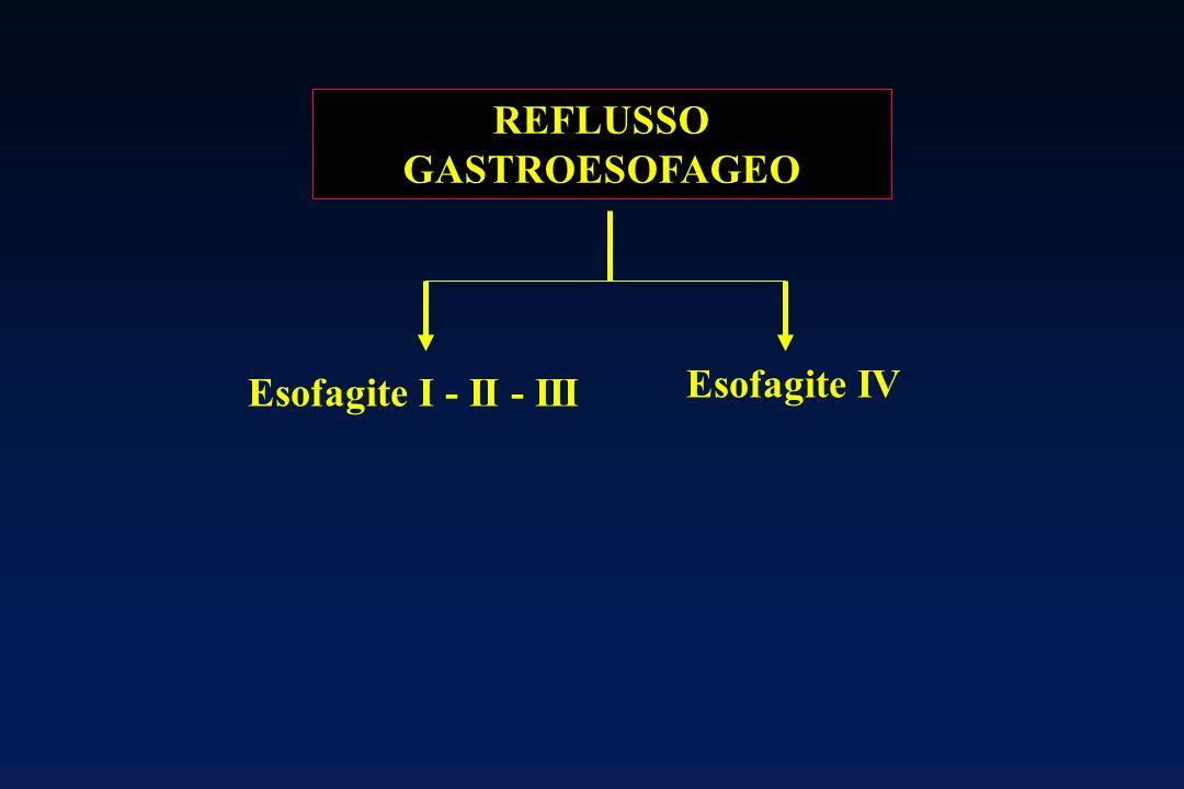 REFLUSSO GASTROESOFAGEO Esofagite I - II - III Lo stadio I comprende erosioni eritematose ed essudative isolate; nello stadio II le lesioni sono confluenti, nello stadio III circonferenziali.