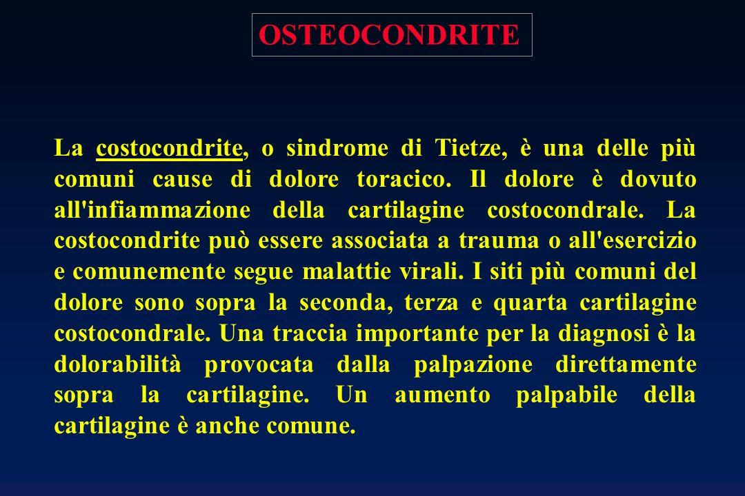 OSTEOCONDRITE La costocondrite, o sindrome di Tietze, è una delle più comuni cause di dolore toracico. Il dolore è dovuto all'infiammazione della cart