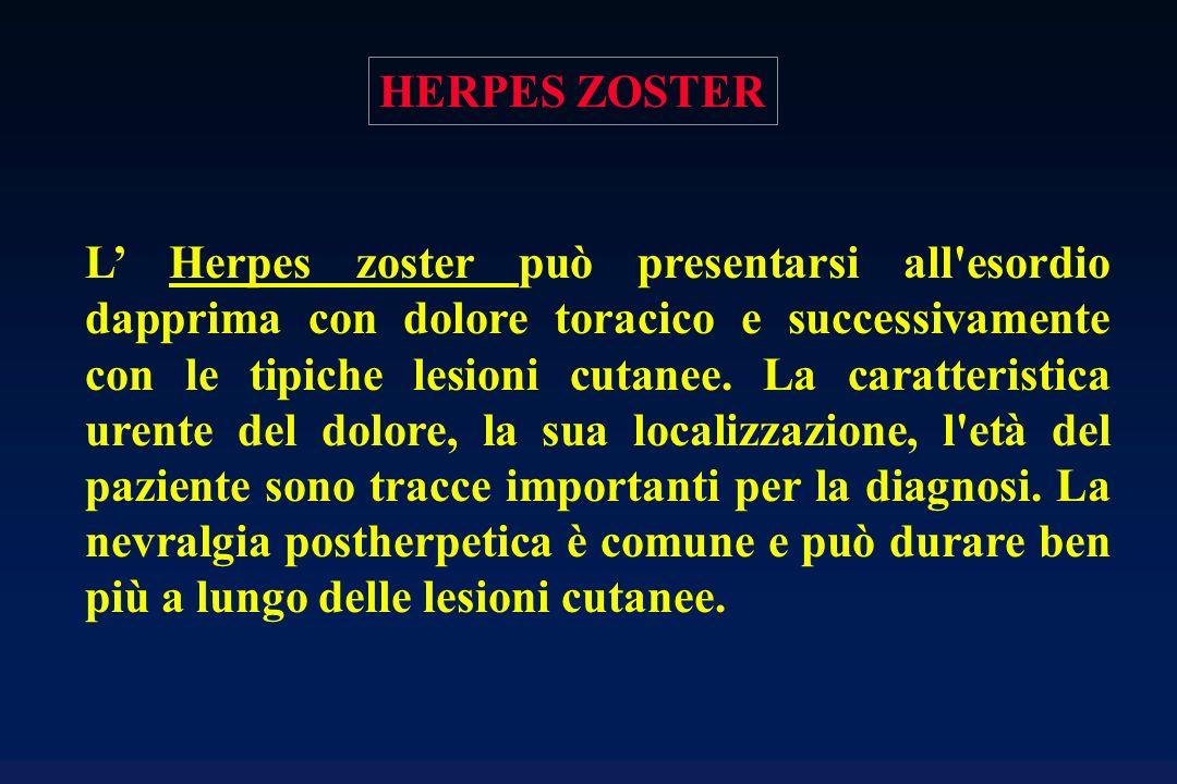 L Herpes zoster può presentarsi all'esordio dapprima con dolore toracico e successivamente con le tipiche lesioni cutanee. La caratteristica urente de
