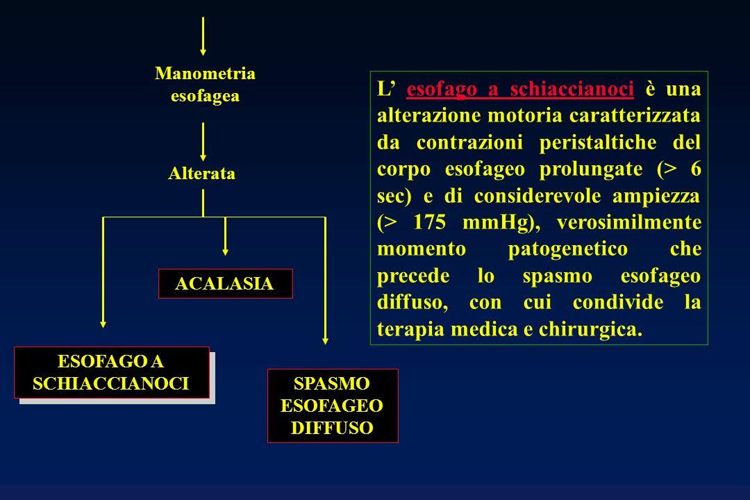 SPASMO ESOFAGEO DIFFUSO Alterata Manometria esofagea ESOFAGO A SCHIACCIANOCI ACALASIA L esofago a schiaccianoci è una alterazione motoria caratterizza
