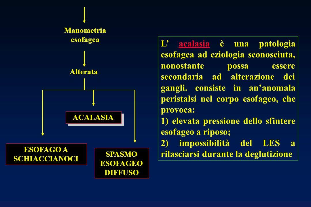 SPASMO ESOFAGEO DIFFUSO Alterata Manometria esofagea ESOFAGO A SCHIACCIANOCI ACALASIA L acalasia è una patologia esofagea ad eziologia sconosciuta, no