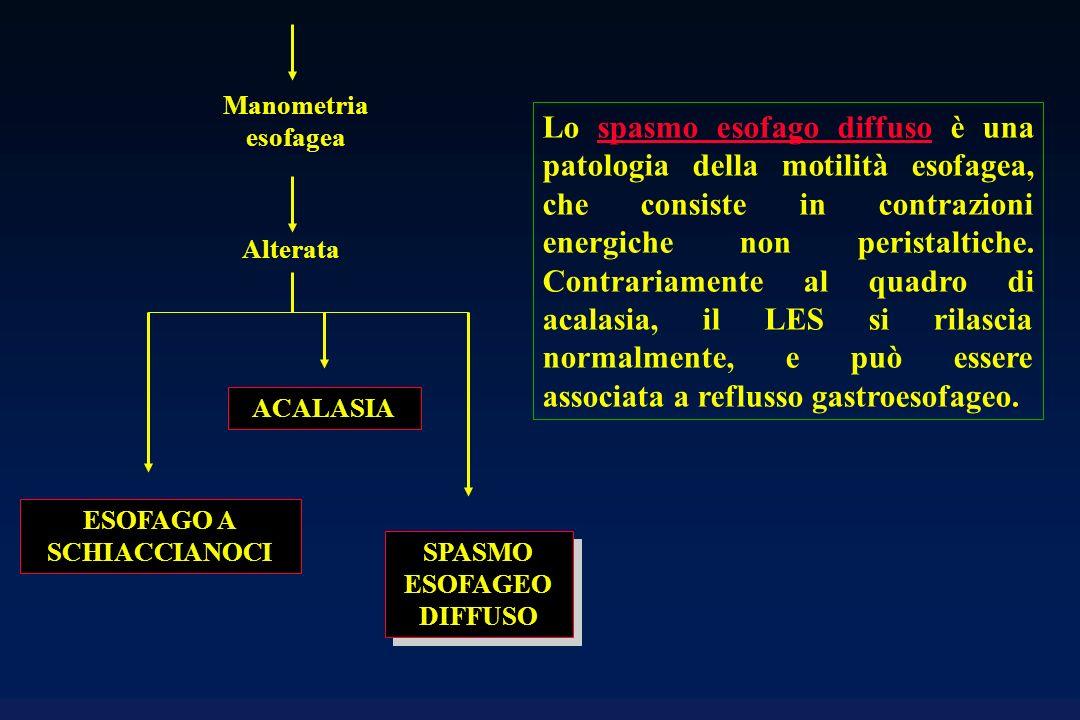 SPASMO ESOFAGEO DIFFUSO Alterata Manometria esofagea ESOFAGO A SCHIACCIANOCI ACALASIA Lo spasmo esofago diffuso è una patologia della motilità esofage