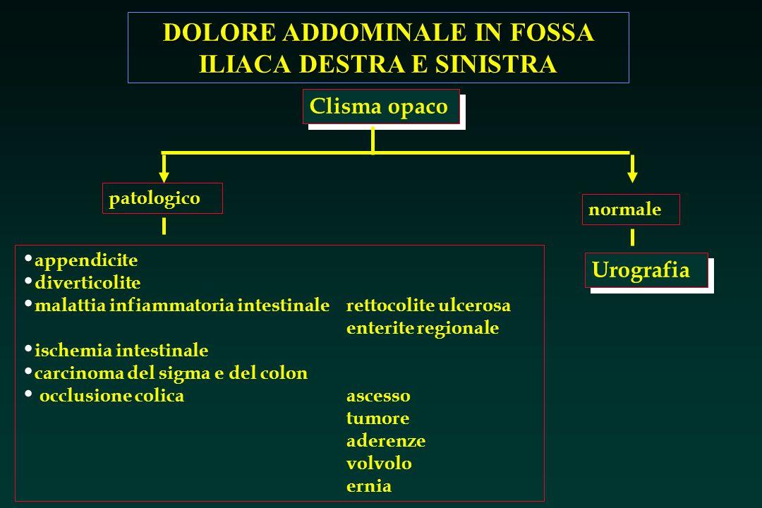DOLORE ADDOMINALE IN FOSSA ILIACA DESTRA E SINISTRA Clisma opaco patologico appendicite La causa più comune di dolore in fossa iliaca destra è l appendicite acuta.