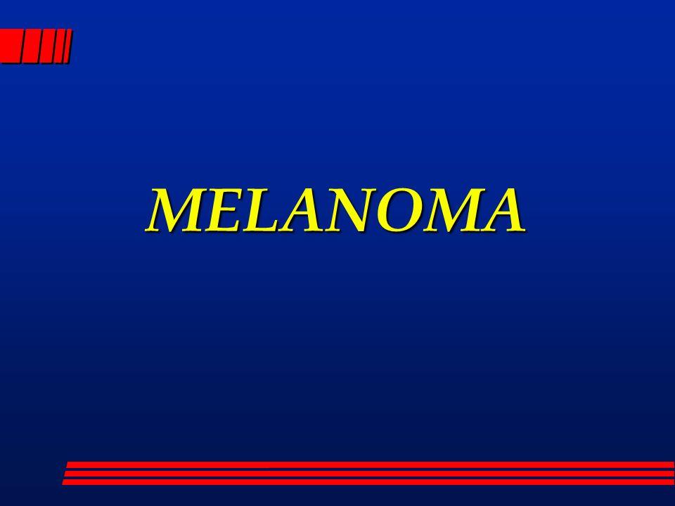 MELANOMA Ogni nevo sospetto dovrebbe essere sottoposto a biopsie multiple.