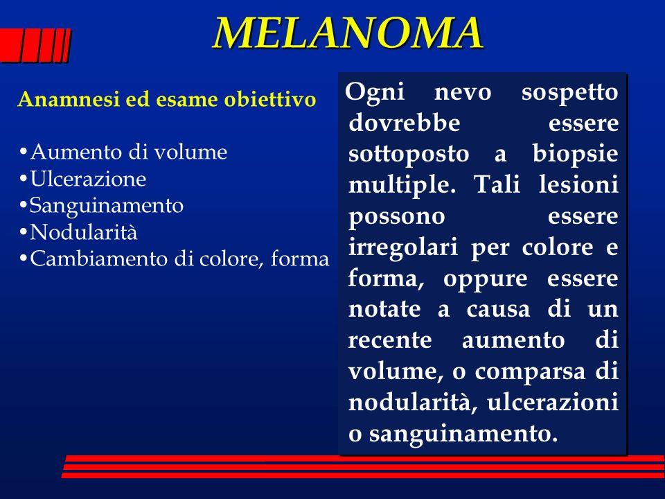 MELANOMA Ogni nevo sospetto dovrebbe essere sottoposto a biopsie multiple. Tali lesioni possono essere irregolari per colore e forma, oppure essere no