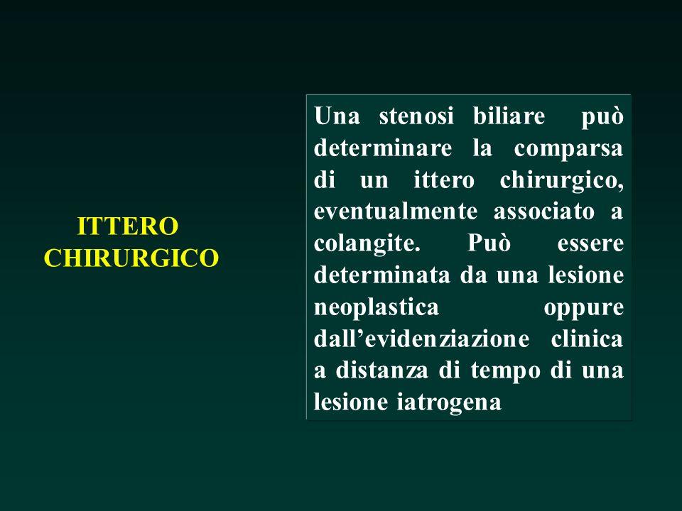 ITTERO CHIRURGICO Una stenosi biliare può determinare la comparsa di un ittero chirurgico, eventualmente associato a colangite. Può essere determinata