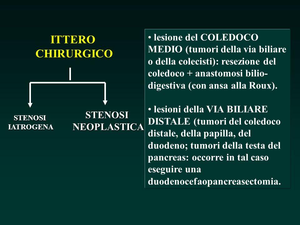 ITTERO CHIRURGICO STENOSIIATROGENA STENOSINEOPLASTICA lesione del COLEDOCO MEDIO (tumori della via biliare o della colecisti): resezione del coledoco