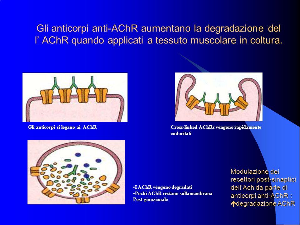 Osservazioni che sottolineano leziopatogenesi immunomediata della MG (Drachman, 1994) La rimozione dei fattori circolanti, compresi gli anticorpi, cau