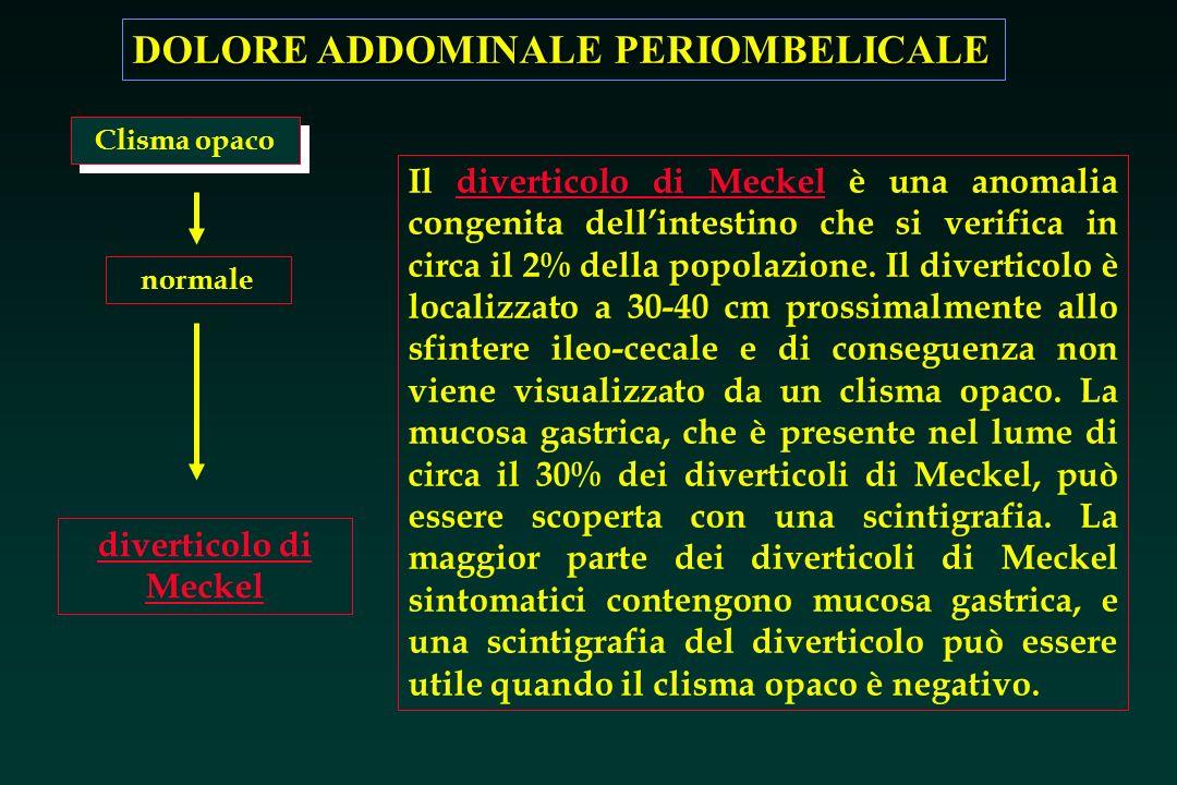 DOLORE ADDOMINALE PERIOMBELICALE diverticolo di Meckel Il diverticolo di Meckel è una anomalia congenita dellintestino che si verifica in circa il 2%